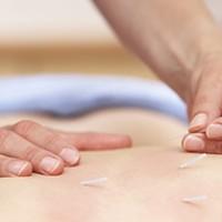 施術コース(鍼、灸、指圧、整体)